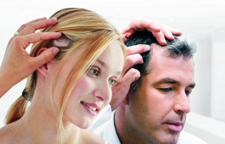 Les français et la chute de cheveux