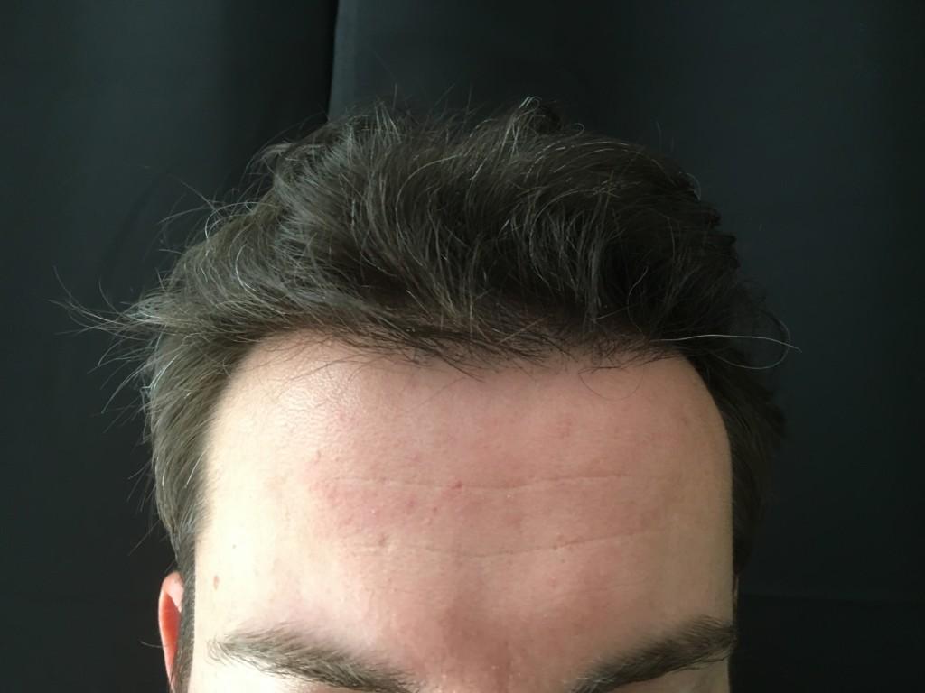 Marc après 6 mois, des cheveux en nombre et naturels