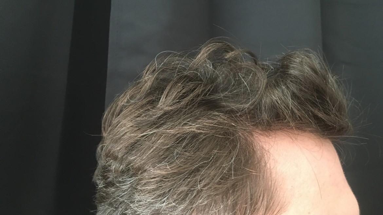 Greffe de cheveux sur les golfes temporaux, un avant / après bluffant!